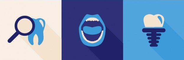 Zobni vsadki – akcija, ki se izplača