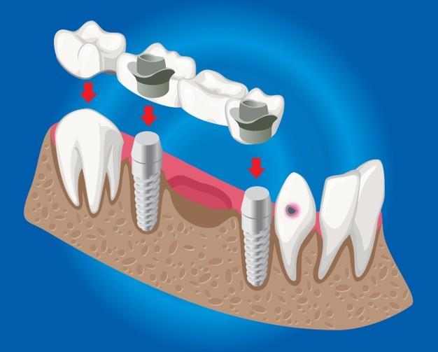Skrb za zdravo zobovje